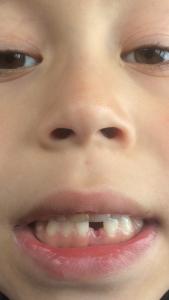 Kjøpe ny tann?