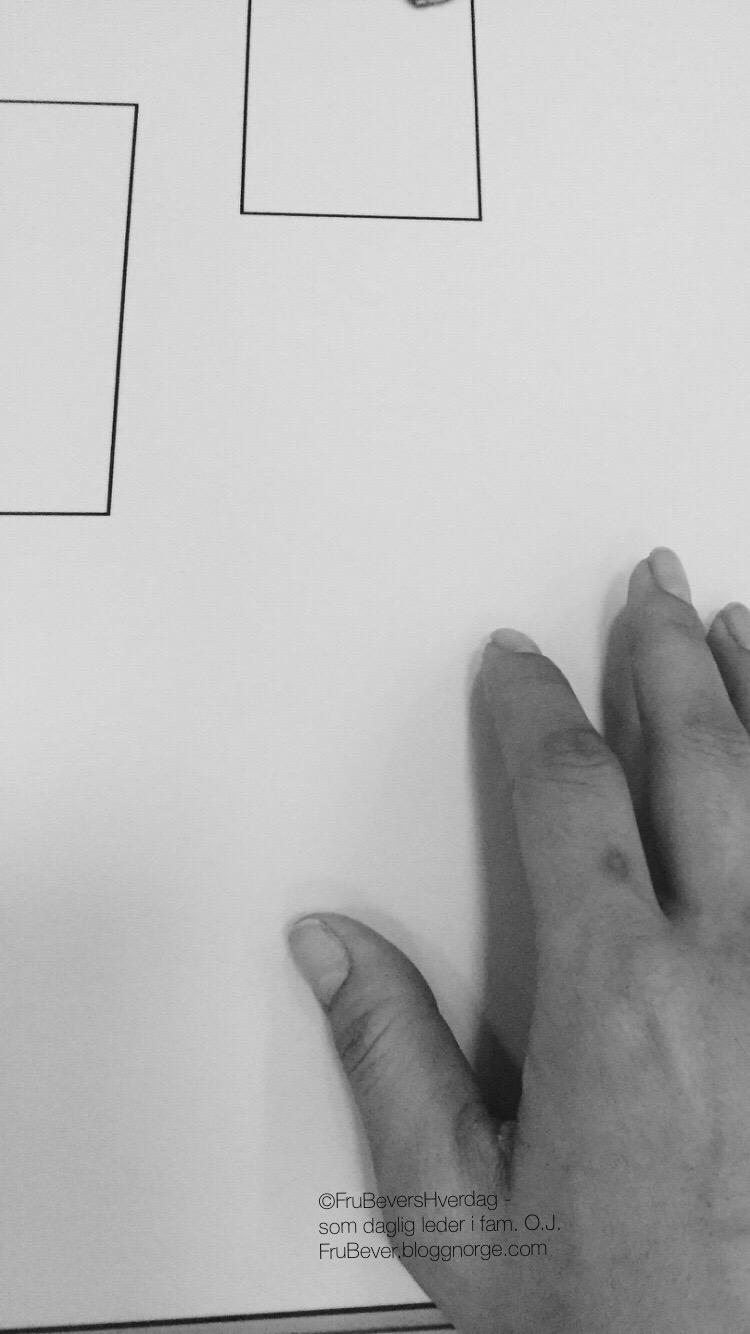 Frubevershverdag @røntgen kløne vinket og brakk hånden